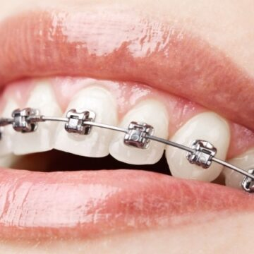 How Do Braces Work – The Advance Information Of Using Braces In 2021